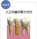 歯を取り付けます