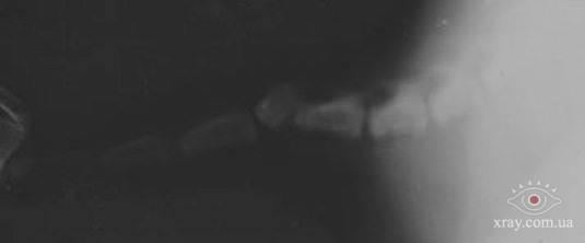 Рис.16. Залом из-за генетической деформации и нарушения взаимного расположения позвонков