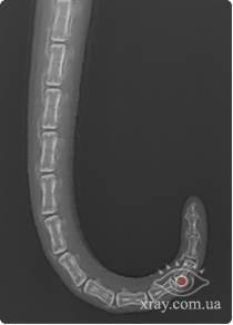 Рис.23. Изгибы хвоста, рентгенограммы в прямой проекции