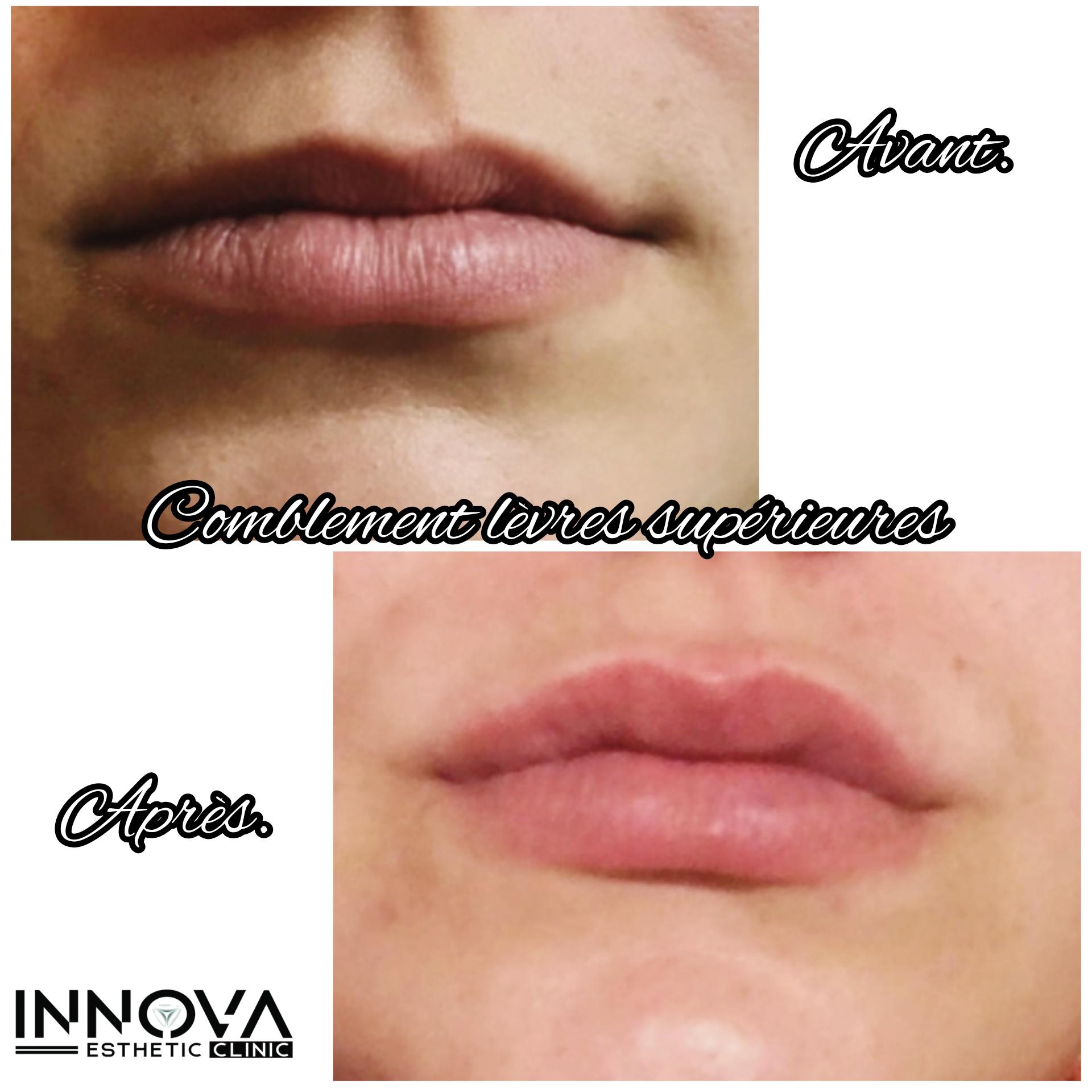Correction d'asymétrie lèvre supérieure