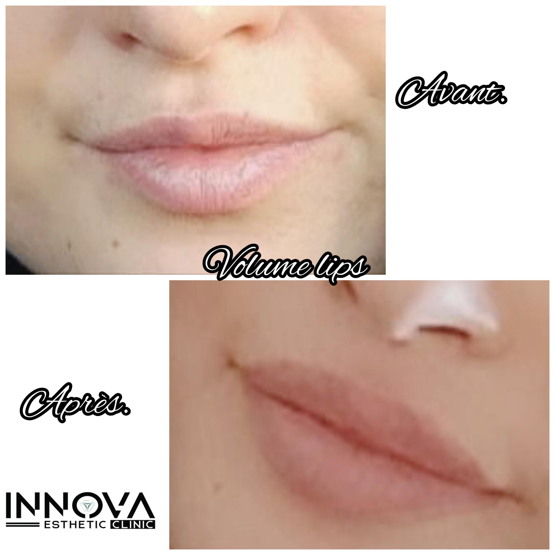 Volume lips