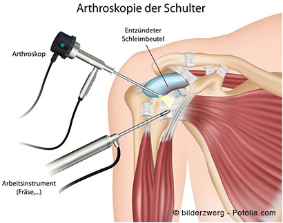 Schematische Darstellung der Arthroskopie der Schulter