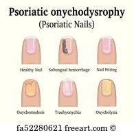 SYMPTOMS OF PSORIASIS NAILS - De website van fungalixforte!