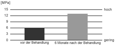 Cellulite - Behandlung mit Stosswellen in Aarau