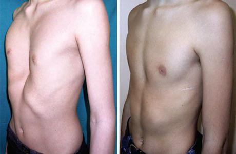 Деформация костей грудной клетки при рахите