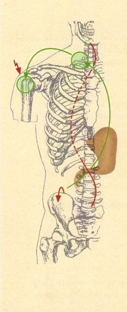 Die Auslöser der Beschwerden können an unterschiedlichen Stellen im Körper liegen Eva Meyer-Gleitz Osteopathie in Hannover List Lister Meile Oststadt