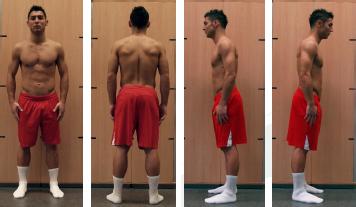 Blickdiagnostik - ventral, dorsal und lateral - Saki