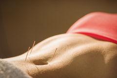 Akupunktur als Hilfe bei Beschwerden