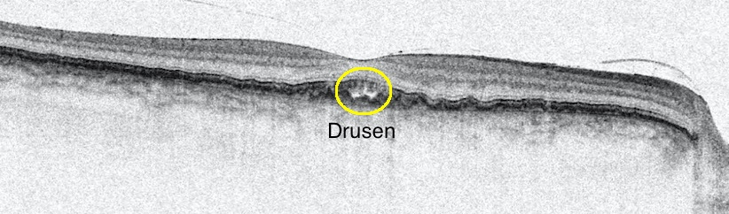 Picture taken in April 2014 showing the druse in my right eye.