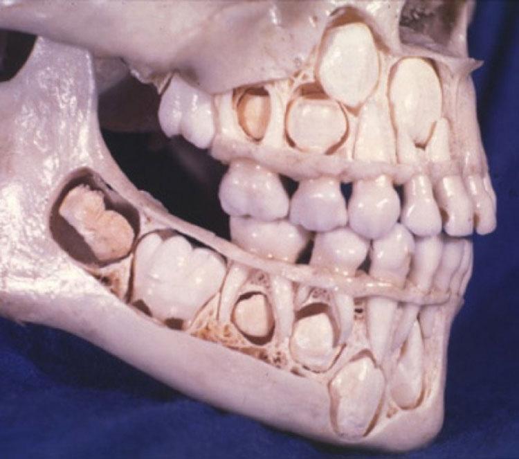 Cráneo de niño con dientes de leche