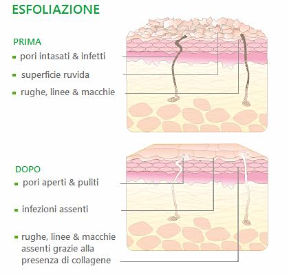 Risultato sulla pelle prima e dopo l'esfoliazione