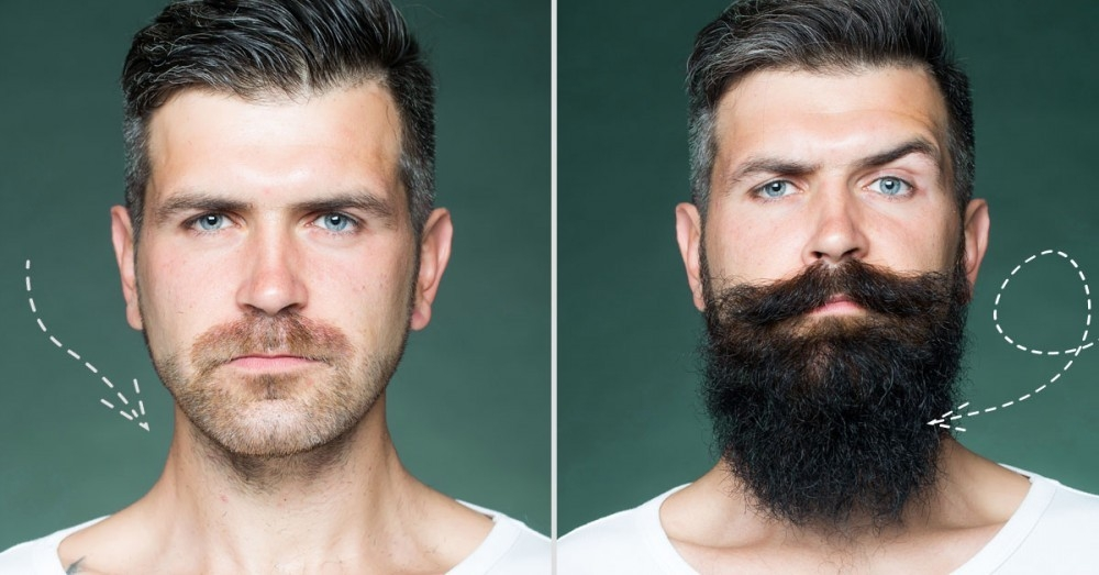 ¿Cuánto tiempo tarda el Minoxidil en hacer efecto en Barba y Bigote?