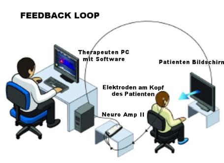 Bildquelle: www.eeginfo-neurofeedback.de