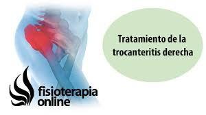 Cartel de Fisioterapia para la trocanteritis