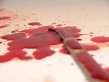 Agressions au couteau : self-défense réaliste ?