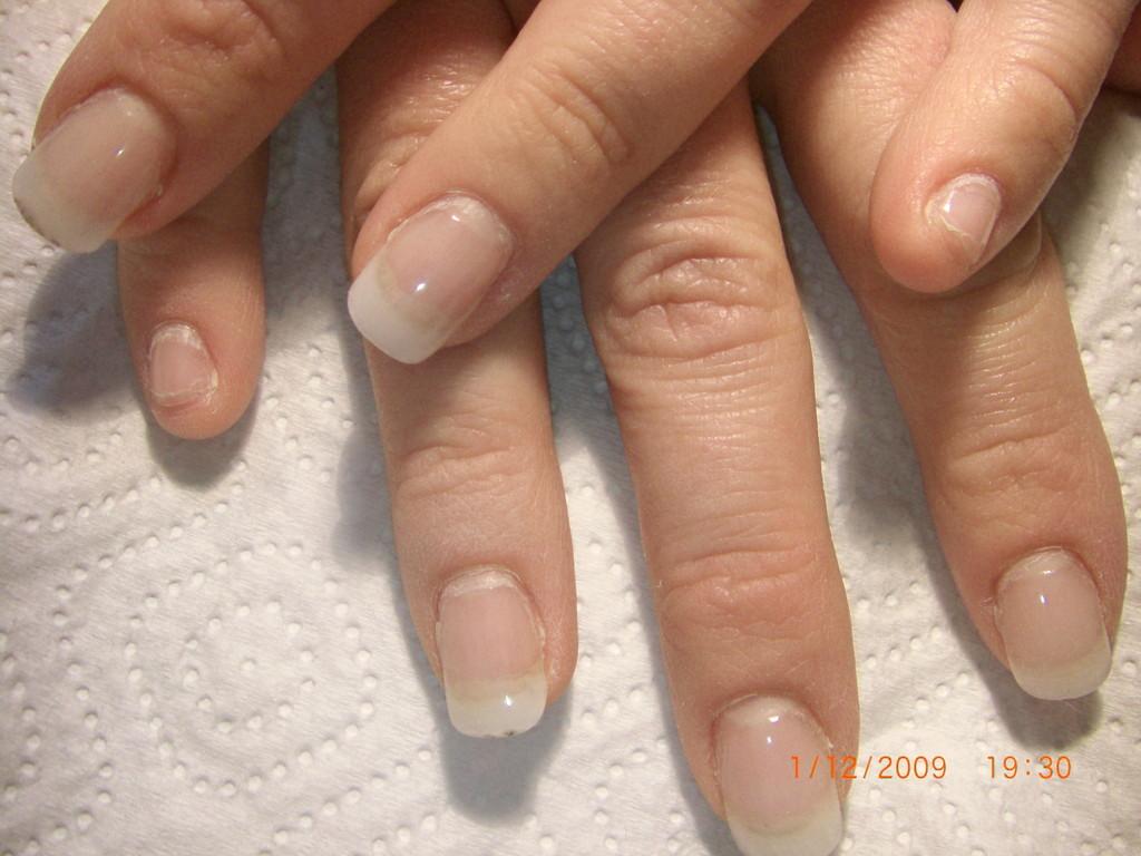 VORHER (kleiner Finger komplett ohne Tip & Gel)