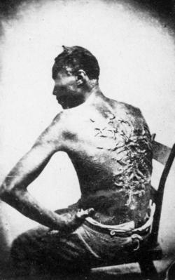 Misshandelter Sklave in den USA, 1863, Wikipedia, gemeinfrei