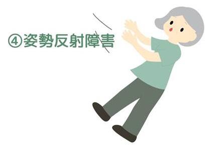 パーキンソン病の症状の一つ、姿勢反射障害