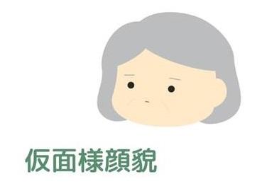 パーキンソン病の症状の一つ、仮面様顔貌(お面のように動きが少なくなります)