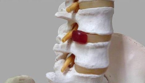 腰椎ヘルニア・脊柱管狭窄症などで神経根が圧迫されるイメージ画像