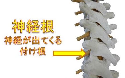 腰椎ヘルニア・脊柱管狭窄症での神経根圧迫の神経根の画像