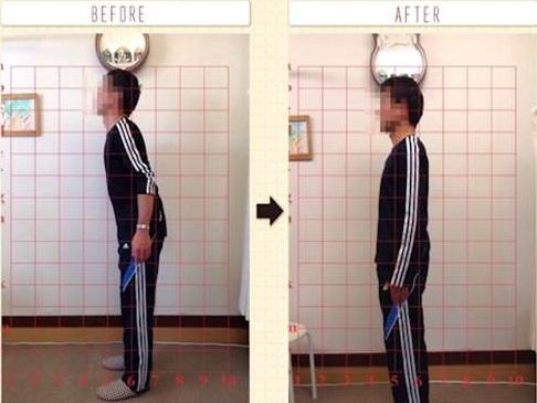 腰痛で来院された方のソフトな施術での改善例