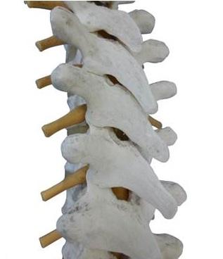 脊柱管狭窄症:背骨と脊柱管と神経根の画像