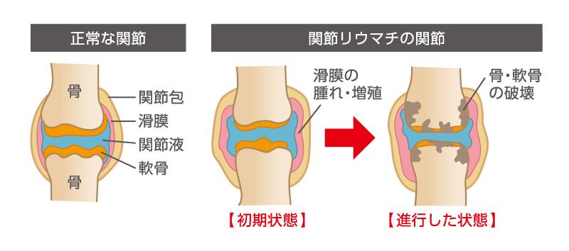 リウマチの痛み、その根本原因を解き明かす。