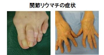 手と足の関節リウマチの症状