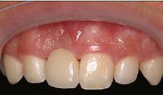 正面から見ると金属は見えず、両隣りの歯も元のままです。