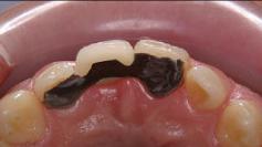 歯はほとんど削らず、噛み合わせの隙間を利用し、両隣りの歯の裏側に薄い金属を貼り付けてブリッジを支えます。